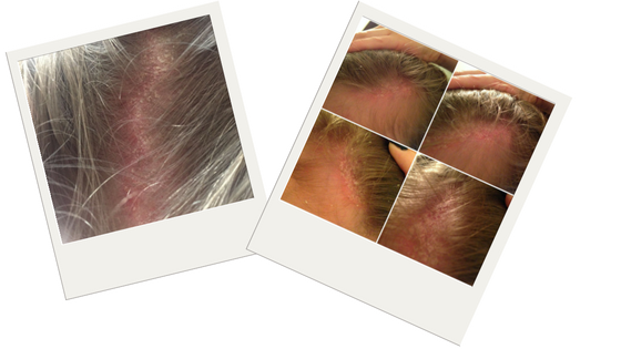 How To Cure Scalp Psoriasis
